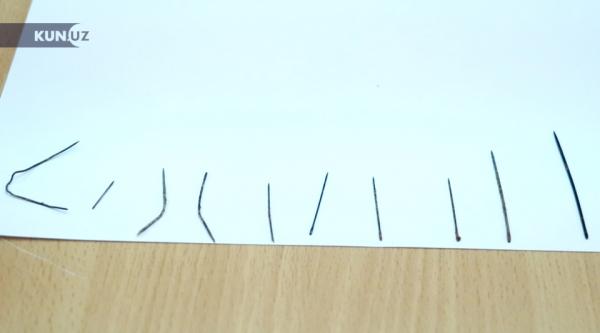 Беспрецедентный случай: в теле годовалого ребенка врачи обнаружили 16 иголок