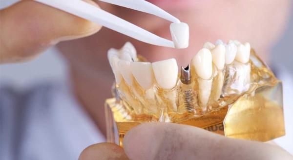 Узбекские ученые создали первый зубной имплантат из отечественных материалов