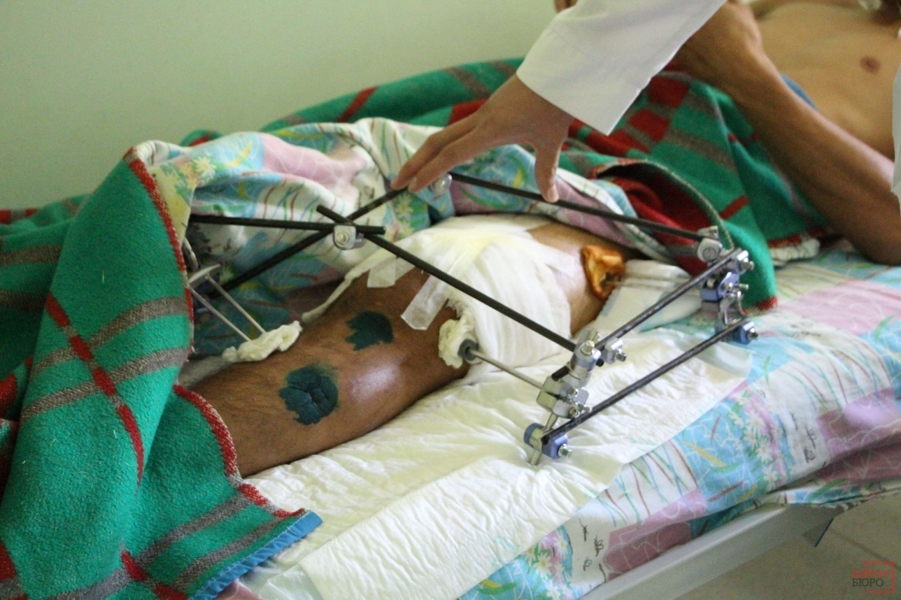 В Астане врачи пришили парню оторванную экскаватором ногу и спасли ему жизнь