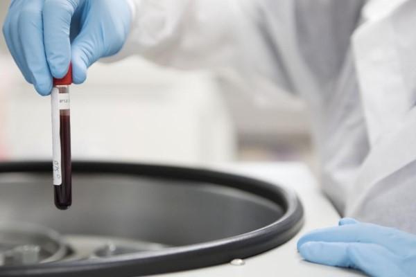 В Узбекистане начнут выпускать уникальный препарат для лечения гемофилии
