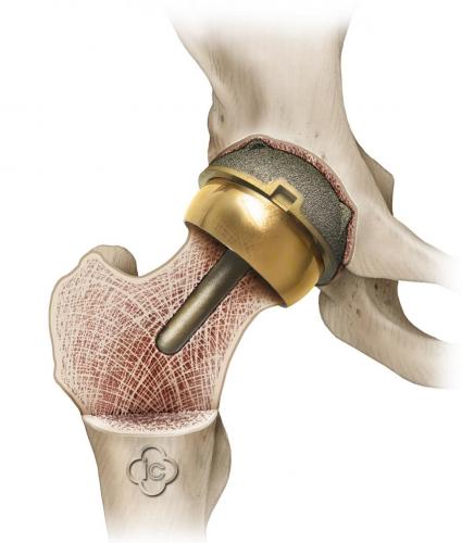 Эндопротезирование тазобедренного сустава: особенности операции