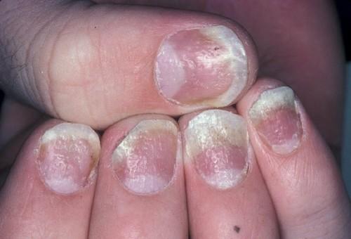 Почему во многих салонах красоты Узбекистана мастера ногтевого сервиса губят ваше здоровье?